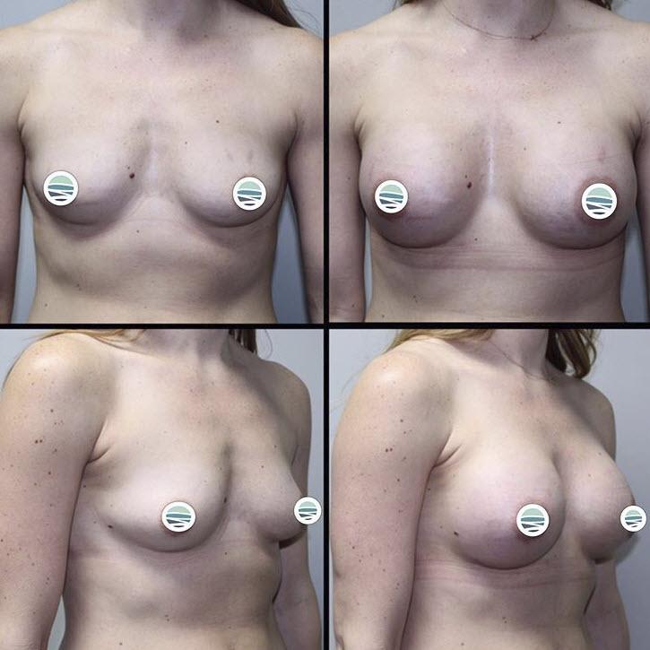 Breast Augmentation Federal Way WA